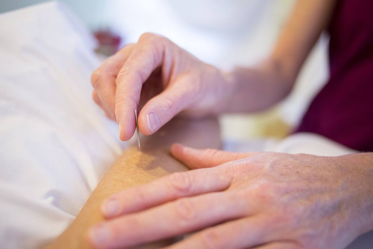 10 Amazing Benefits of Acupuncture